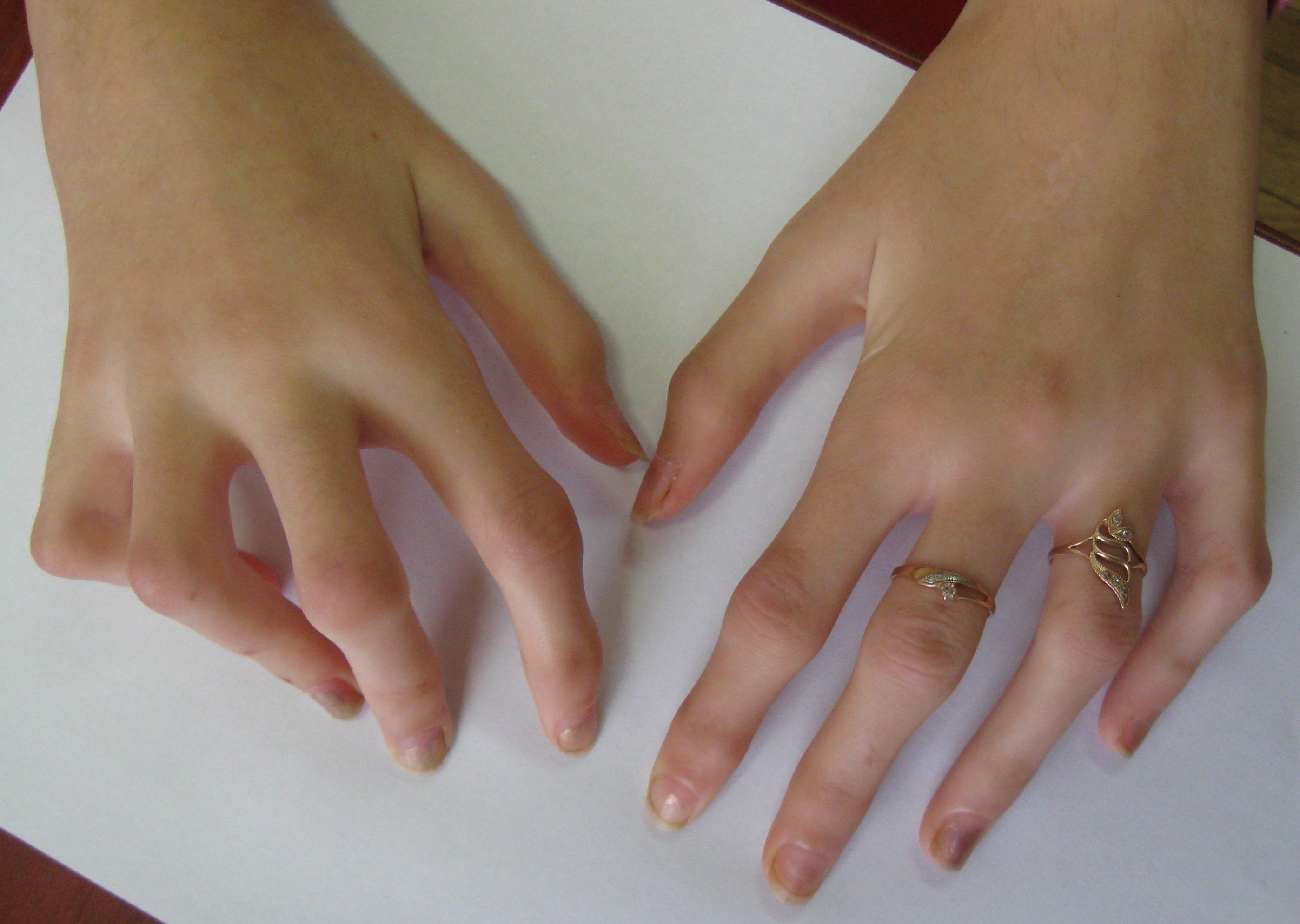 Fingerarthritis