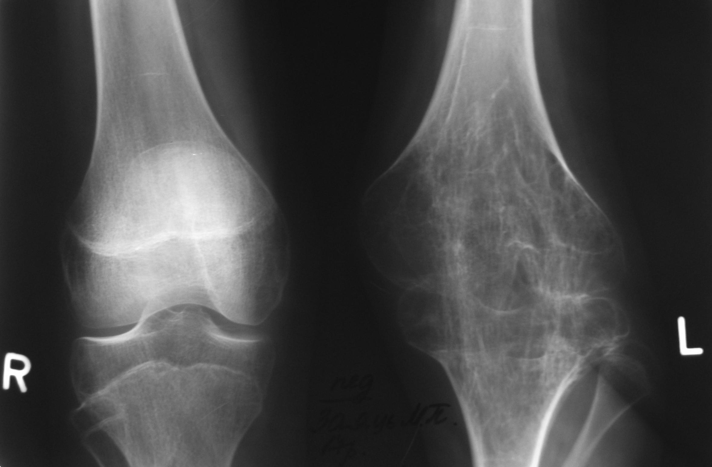 Gonarthritis